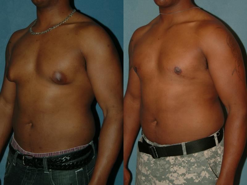 Redução da mama masculina