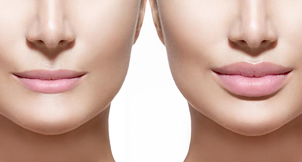 Como é feita a harmonização facial?